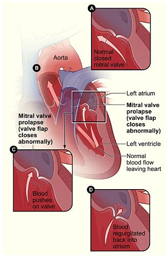 Mitral Valve Prolaspse & Regurgitation