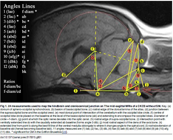 Mri csf flow study procedure