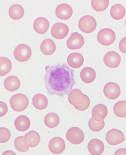 CKCS giant platelet on blood smear (Univ. Minn. 2013)