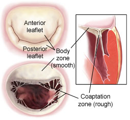 Mitral Valve Coaptation