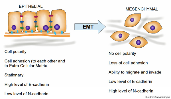 Epithelial to Mesenchymal Cell Transition