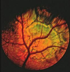Cavalier King Charles Spaniel with Geographic Retinal Dysplasia