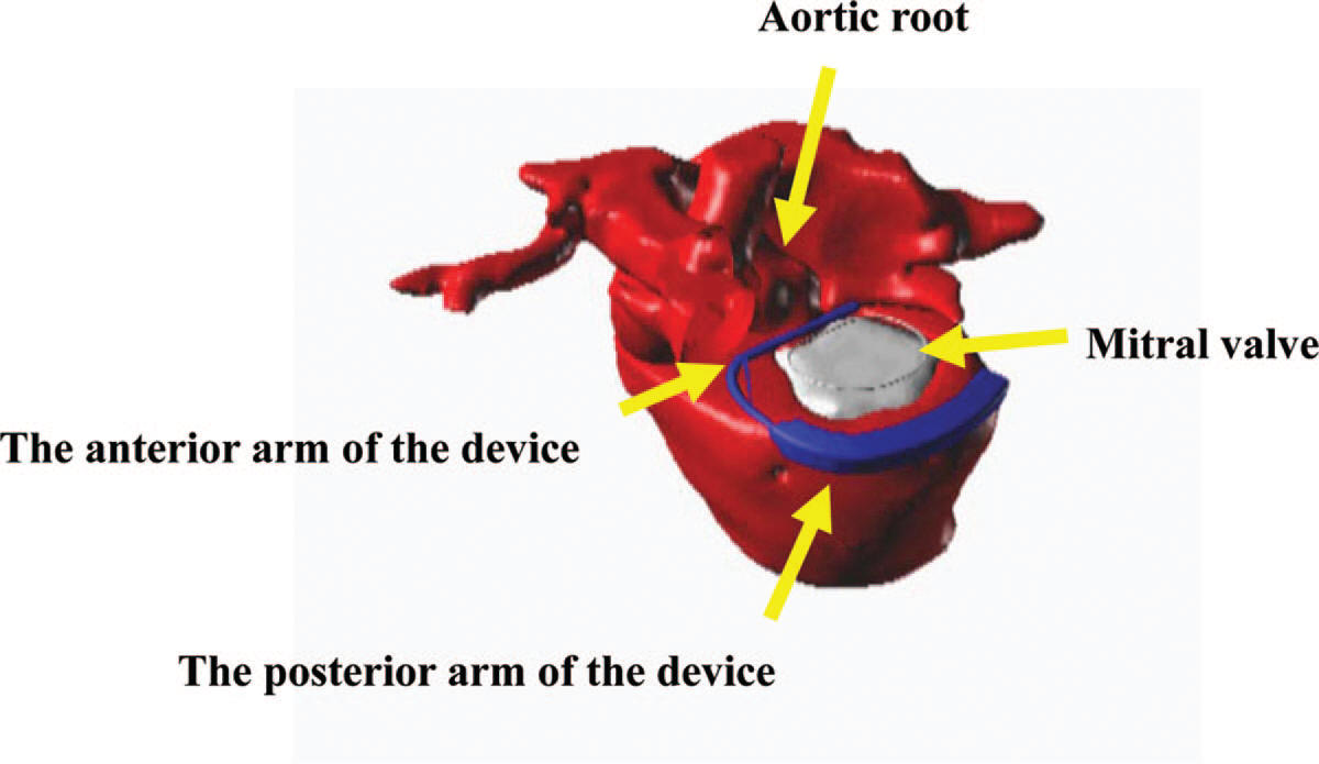 Miitral Touch device implanted on heart
