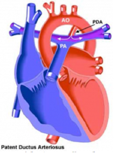Patent Ductus Arteriosus (PDA) and the Cavalier King ...