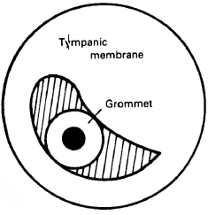 Grommet in ear drum