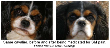 Before and After Pain Medication